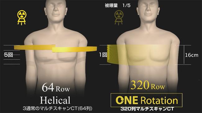 320列心臓CTスキャン